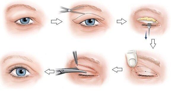 Phẫu thuật cắt mí mắt có hại không