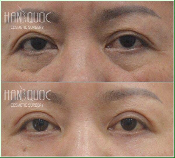 Trước phẫu thuật: bọng mỡ mắt nhiều. Sau khi thực hiện phẫu thuật lấy mỡ mắt và da thừa tại Kim Hospital, bọng mỡ mắt đã biến mất hoàn toàn.