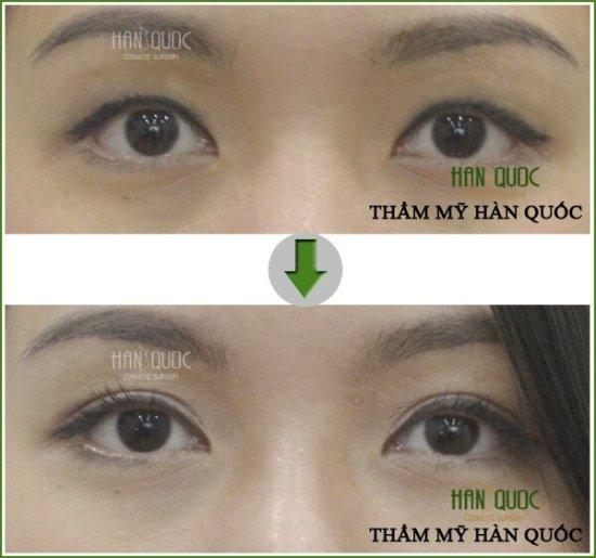 Sau khi nhấn mí mắt tại Kim Hospital: đôi mắt của khách hàng trông to hơn