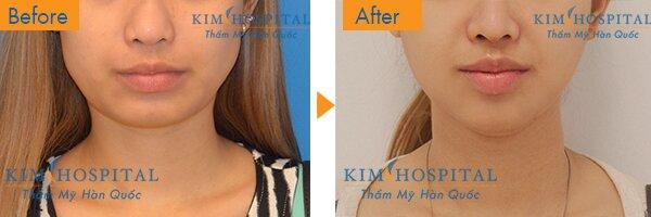 Gương mặt hơi thô cứng với chiếc cằm ngắn và góc hàm lớn đã hoàn toàn được thay đổi sau khi phẫu thuật cắt góc hàm tại Kim Hospital. Gương mặt cô ấy giờ đây đã trở nên hài hòa và thon gọn, mang lại nét mềm mại nữ tính rất thu hút người đối diện.