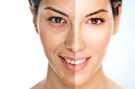 Bơm mỡ kết hợp tế bào gốc giúp làn da trắng sáng và căng mịn, biến khuôn mặt hốc hác trở nên đầy đặn hơn
