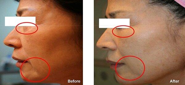 Trước khi căng da mặt: Vùng da mặt của khách hàng bị đen sạm, làm cho khuôn mặt trở nên già đi. Nhưng sau khi thực hiện căng da mặt bằng chỉ tại Kim Hospital, làn da của khách hàng đã trở nên căng mịn, trắng sáng hơn rất nhiều