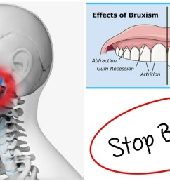 bruxism treatment and jaw alignment in granada hills kimia family dentistry [ 1280 x 720 Pixel ]