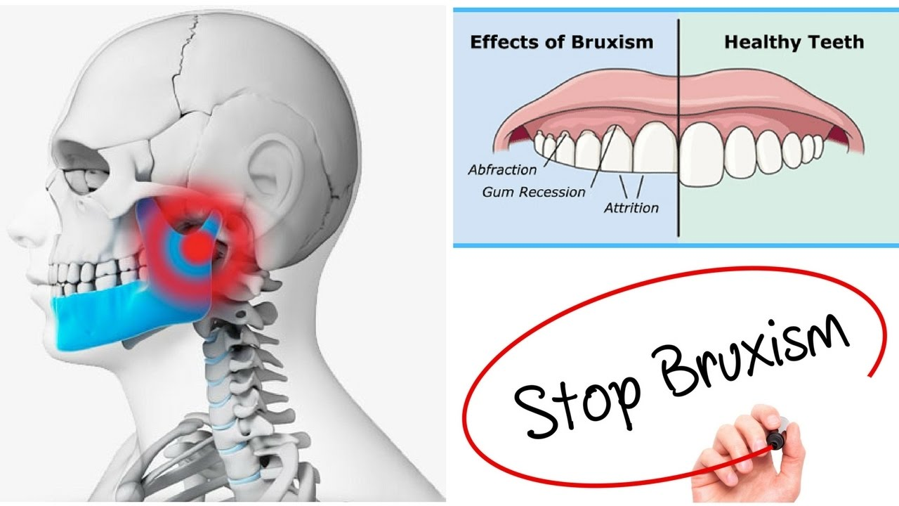 hight resolution of bruxism treatment and jaw alignment in granada hills kimia family dentistry