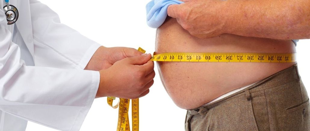 obezite ameliyati sonrasi bu oneriye dikkat