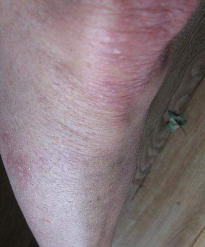 after-leg
