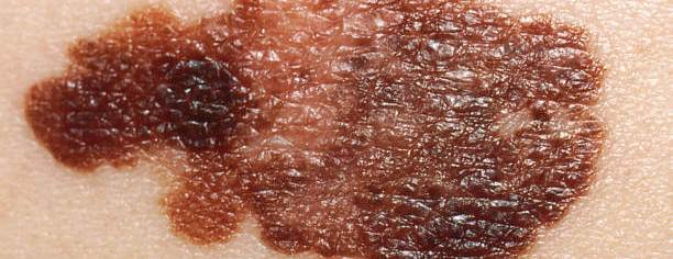 10 dangerous signs to watch out for skin cancer