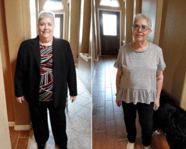 Why should you exercise after VSG weight loss surgery?