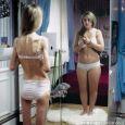 Anorexia nervosa A kórkép lényege a torzult testvázlat-érzés, kóros félelem az elhízástól, a legkisebb normálisnak ítélhető testsúly megtartásának elutasítása, és nőknél a menstruációs ciklusok hiánya. . Az ebben a kórban […]