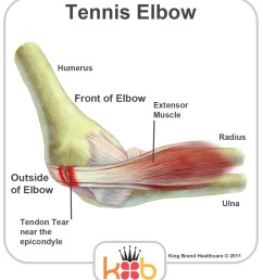 tennis elbow labelled diagram [ 950 x 1060 Pixel ]