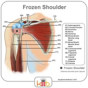 King Brand Frozen Shoulder Treatment Inflamed Joints