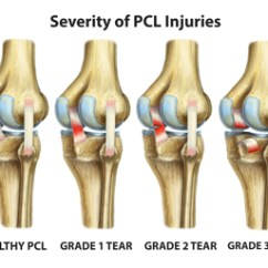 Knee Diagrams Anatomy Of A Vw Polo 6n2 Electric Window Wiring Diagram Elbow Injuries – Pcl Cardiofree Workouts