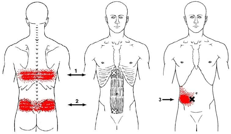 rectus abdominis trigger points