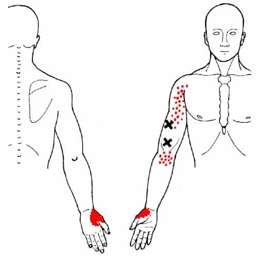 brachialis trigger points