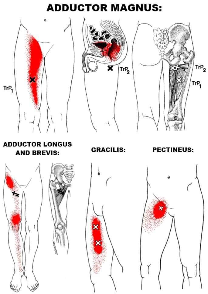 hip adductor trigger points