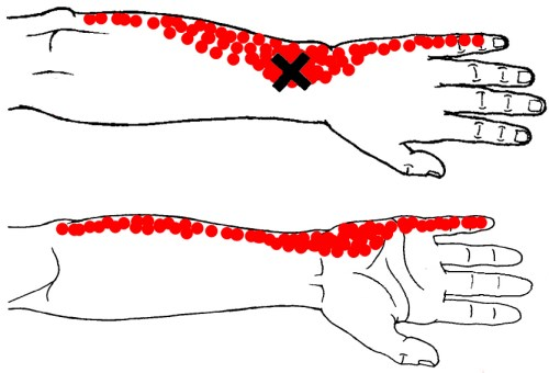 pronator quadratus trigger point