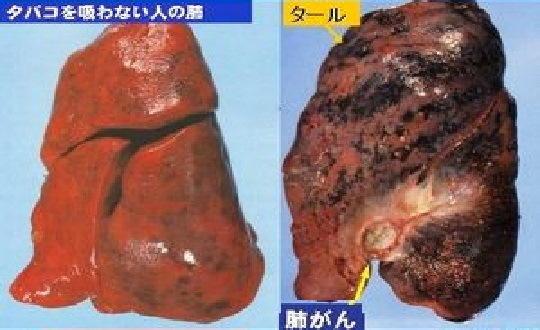 喫煙 癌 確率