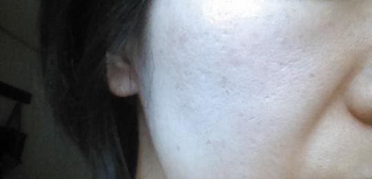 顔 シミ 予防