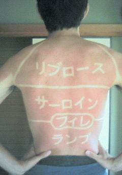 背中の日焼け