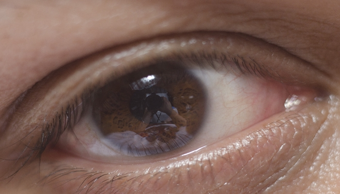 光化学スモッグ 症状 対照法 対策 目