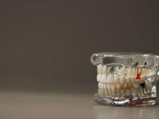 歯ぎしりマウスピース