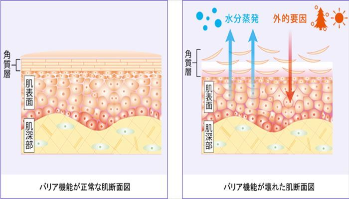 乾燥肌 対策 原因