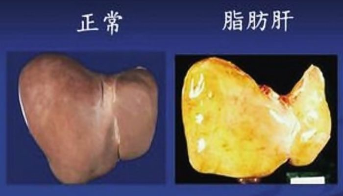 ダイエット 脂肪肝