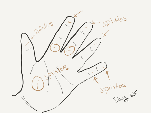"Tracing of the author's left hand, palm side up, with joints indicated, and brown lines to indicate splinters, which are also labeled ""splinters"" with arrows and circles where necessary."