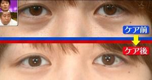 目の下のクマ2