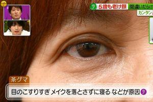 目の下のクマ8