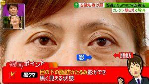 目の下のクマ9