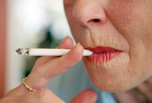 喫煙口周り皺