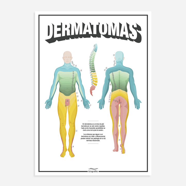 Los dermatomas del cuerpo humano. Poster para quiroprácticos