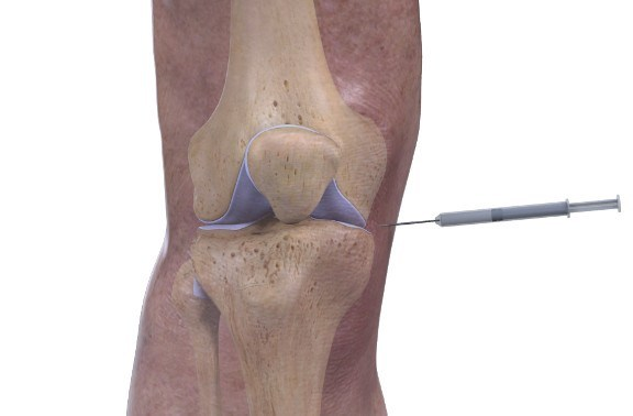 cortisone injection into the knee