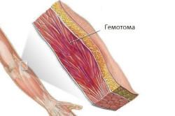 cauze spirituale ale articulațiilor bolii durere sălbatică în toate articulațiile