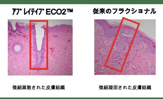 eco2皮膚