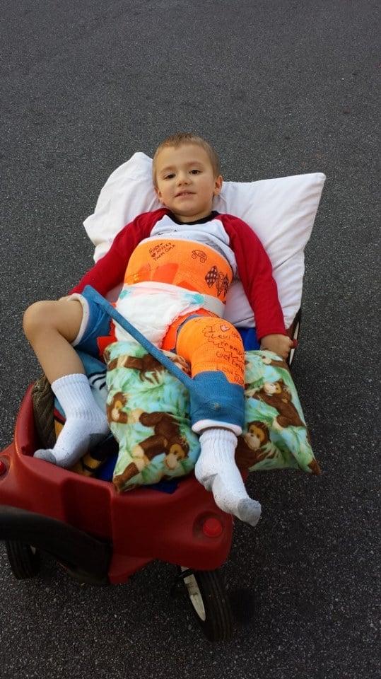 Then the femur break happened. He fell at a playground & broke his left femur bone