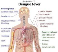 symptoms of dengue fever
