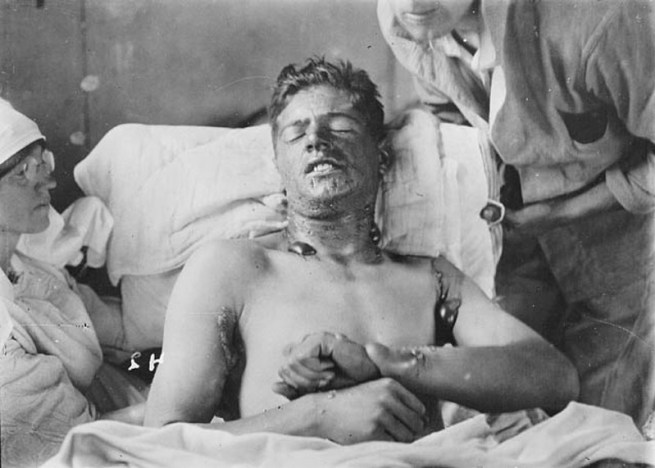 File: An unidentified Canadian soldier with mustard gas burns, photographed during World War I. (Wikimedia Commons)