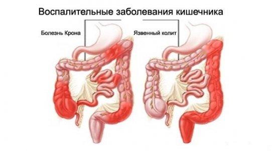 Лечение колита кишечника у взрослого народными средствами: 10 рецептов