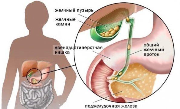 Utilizare a bilei medicale pentru durerile articulare - aer-bucuresti.ro