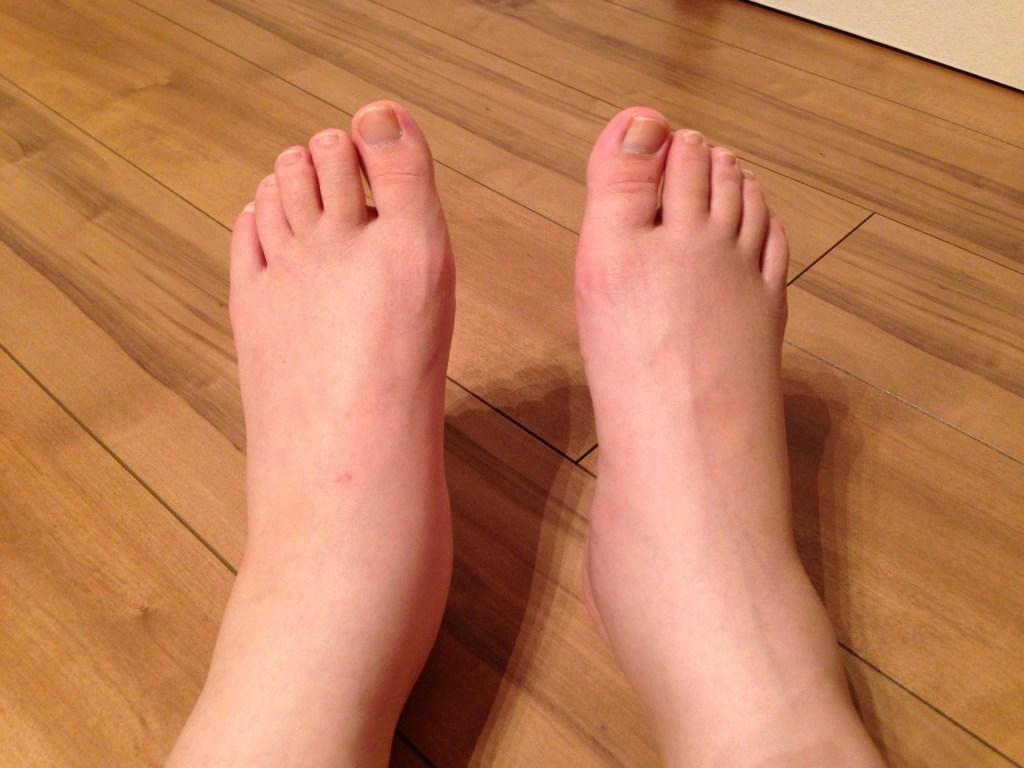 足首 腫れ