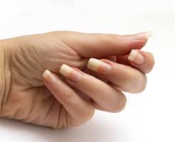 爪 白い線