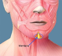 Chin Dimple Removal at non-surgical treatment clinics ...