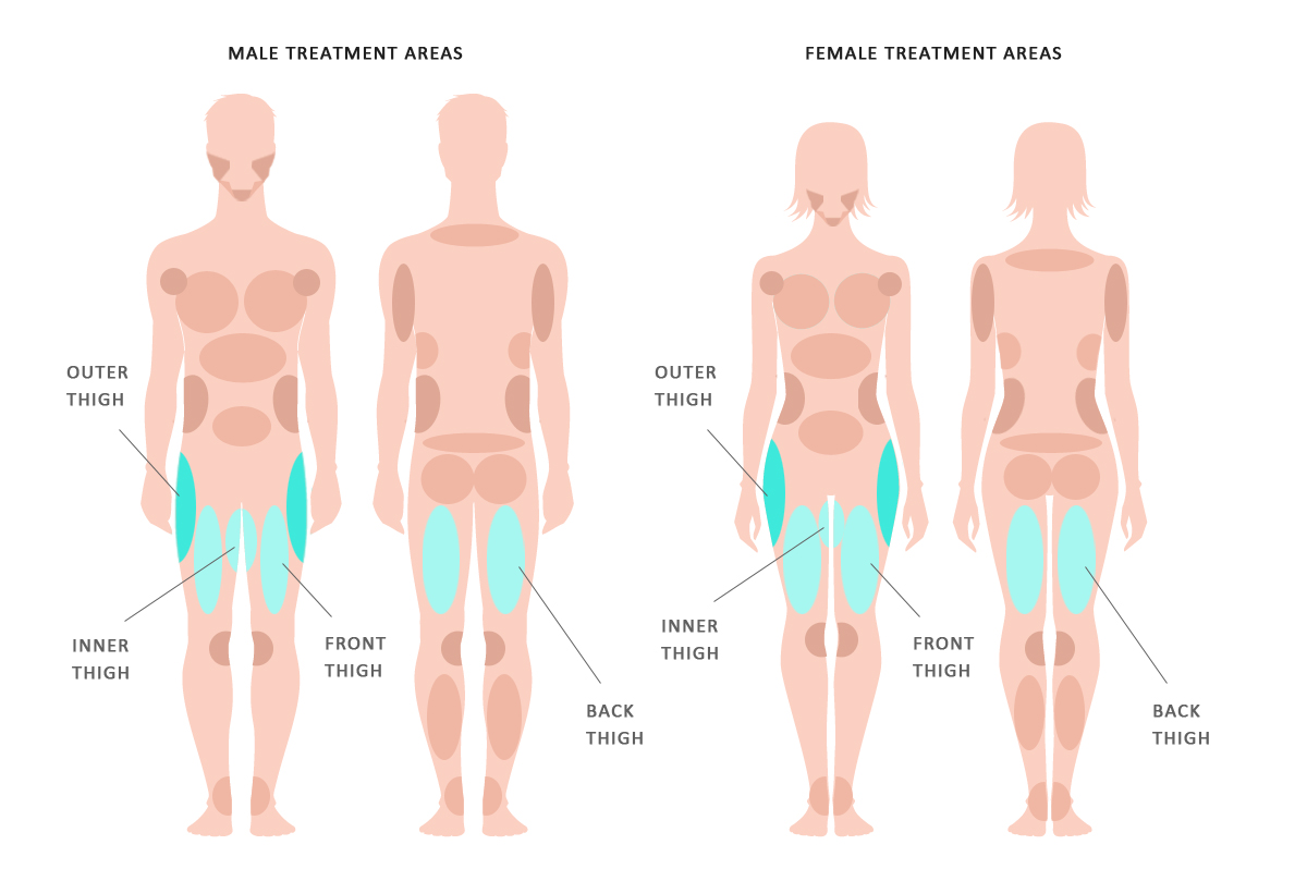 Hips/Thighs - KleinLipo - Liposuction Surgery of Orange County