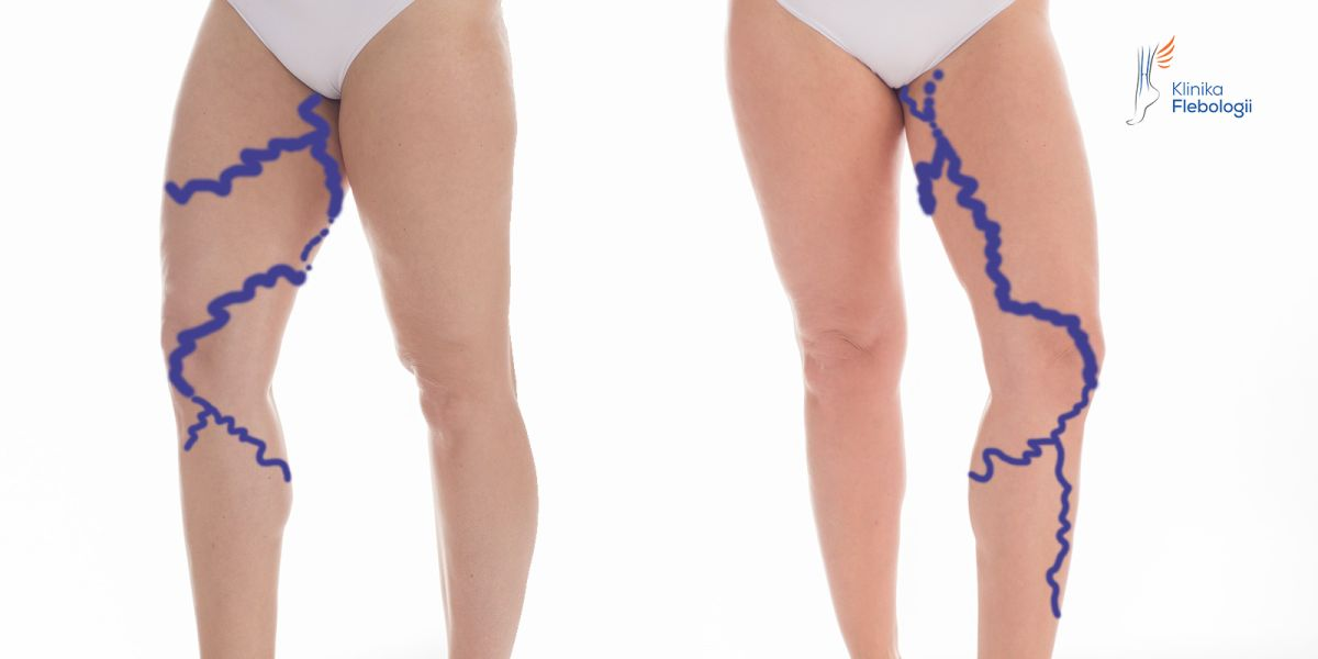 Venous Insufficiency Of Lower Limbs Phlebology Clinic