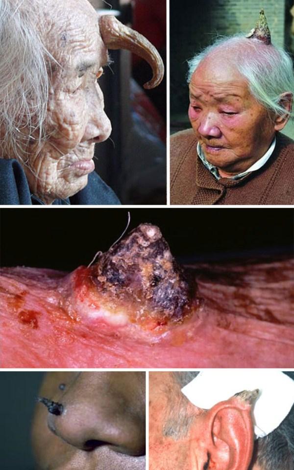 Deformities And Genetic Mutations 32 Photos Klyker Com