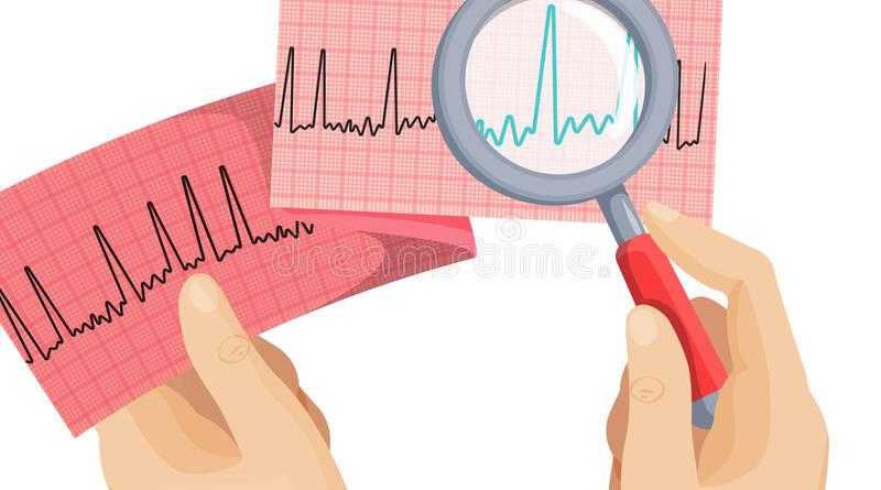 Should patients with atrial fibrillation and stable coronary artery disease receive an oral anticoagulant, an antiplatelet or both?