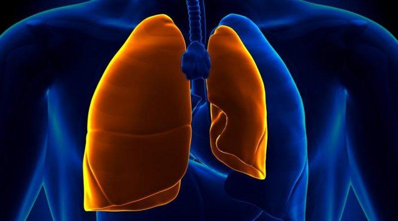 Conservative versus Interventional Treatment<br>for Spontaneous Pneumothorax
