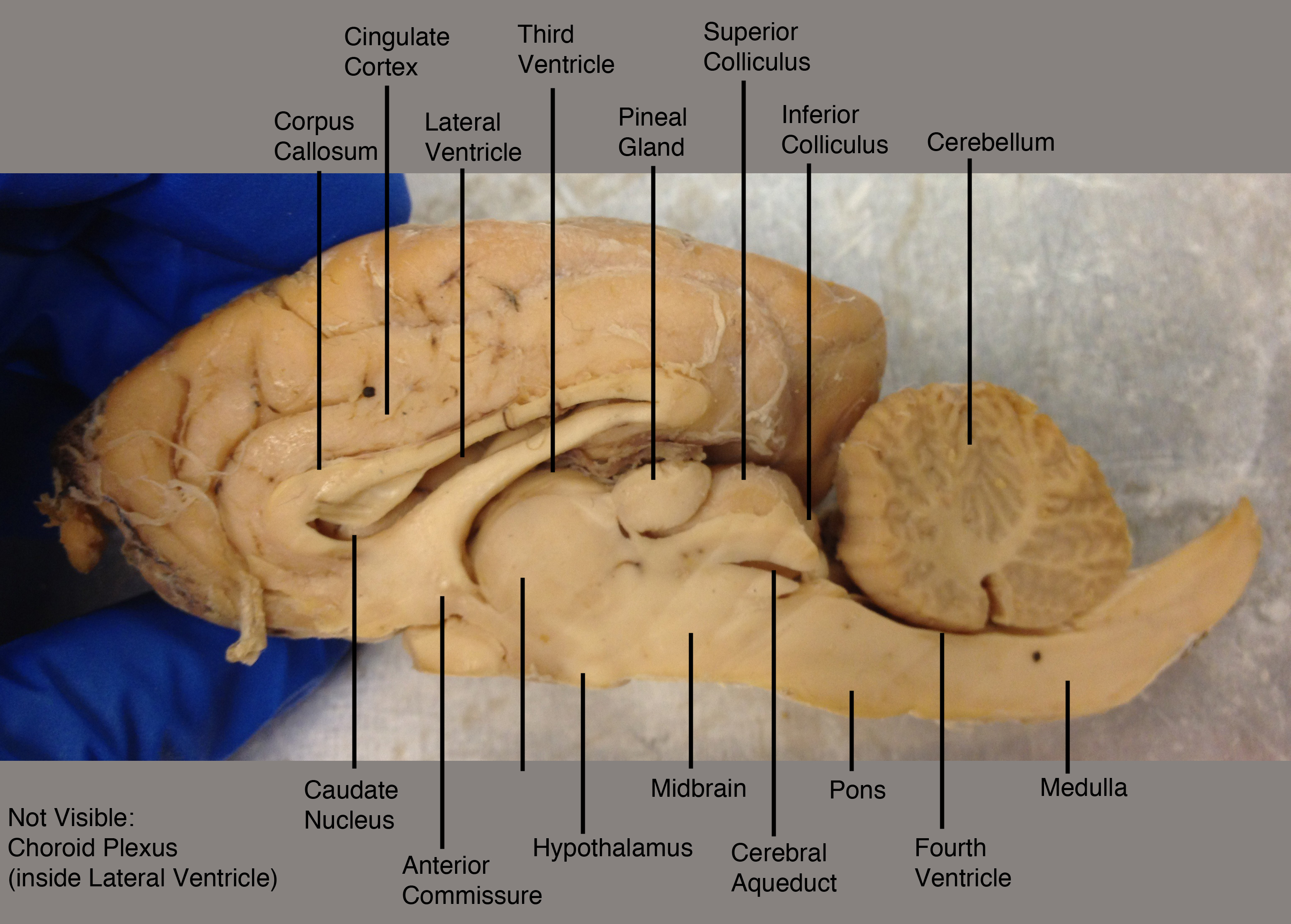 Labeled Sheep Brain Sagittal View Pictures To Pin On
